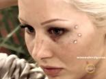 BGC 11 Sarah Oliver bleeding eye scratched face